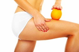 Natural remedies against cellulite