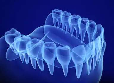 Examples of oral diseases and dental health
