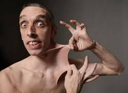 The man with the most elastic skin in the world