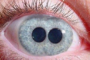 People with double pupils in their eyes, right or lie?