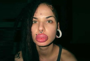 The woman with the world's largest lips